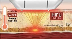 Review of HIFU Rejuvenation Machines